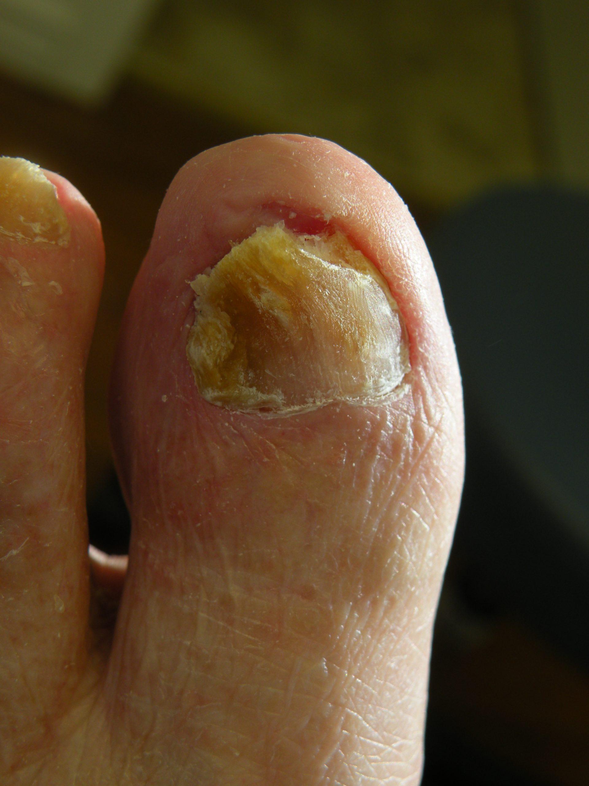 Dermatologie st-eustache